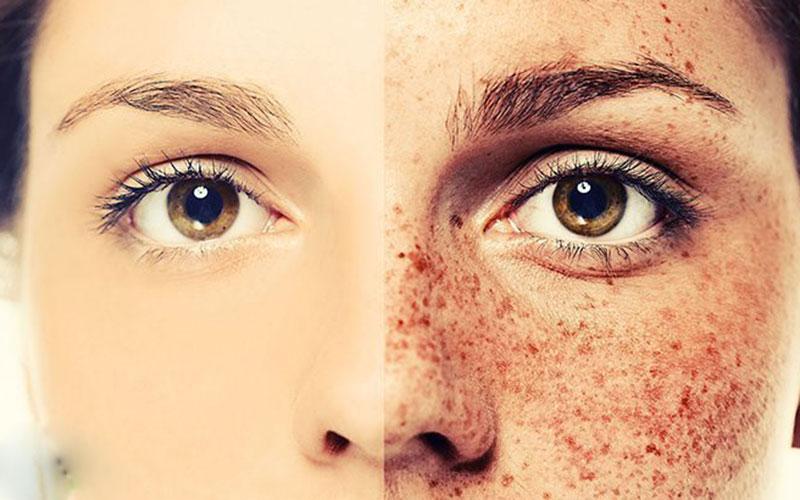 Làn da sáng mịn hơn khi sử dụng trà lá sen