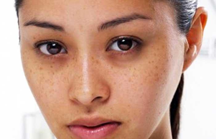 sạm da do sử dụng thuốc ngừa thai giảm cân